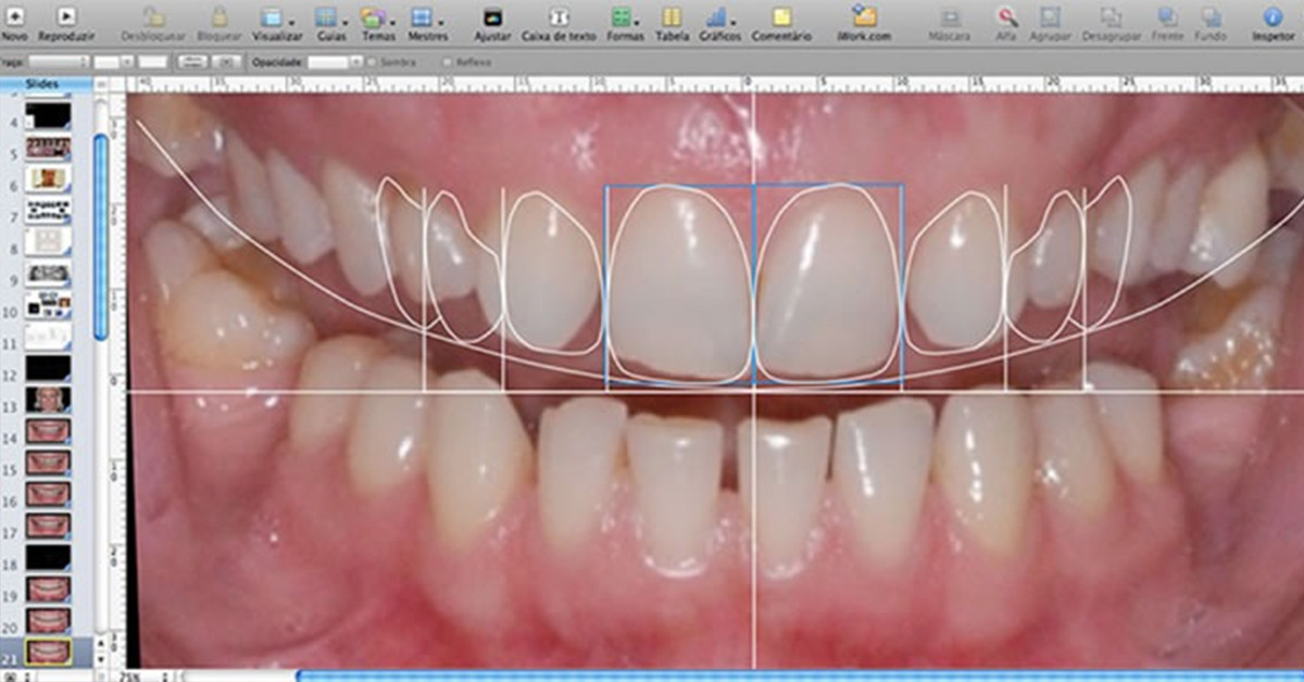 Digital SMile Design 2