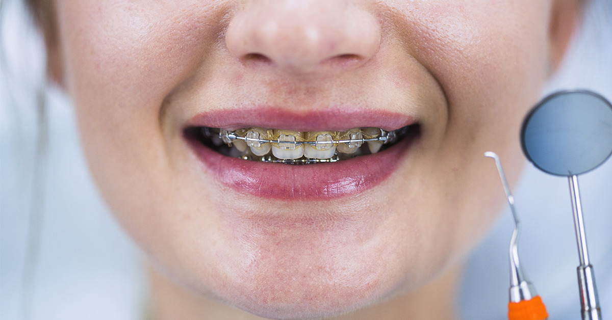 Braces in South Delhi 6