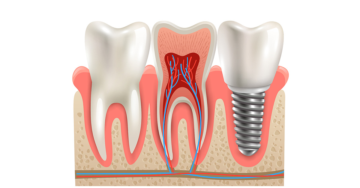 Dental Implants For All Age Groups-1