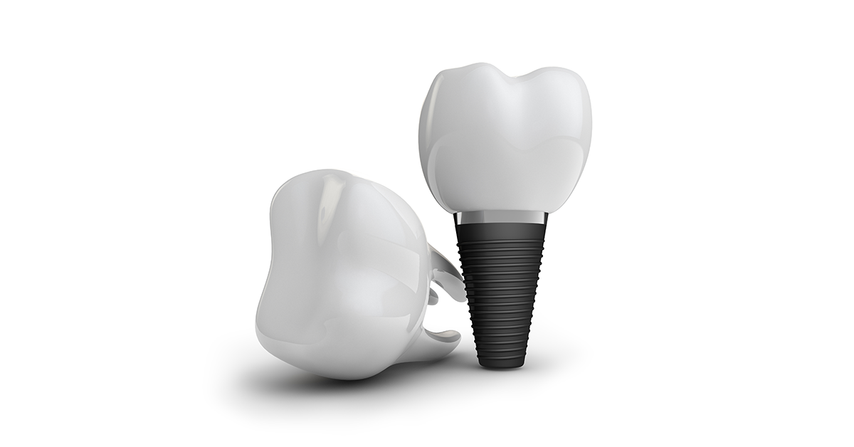 Why should I replace my missing teeth