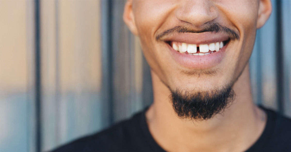 Why should I replace my missing teeth4