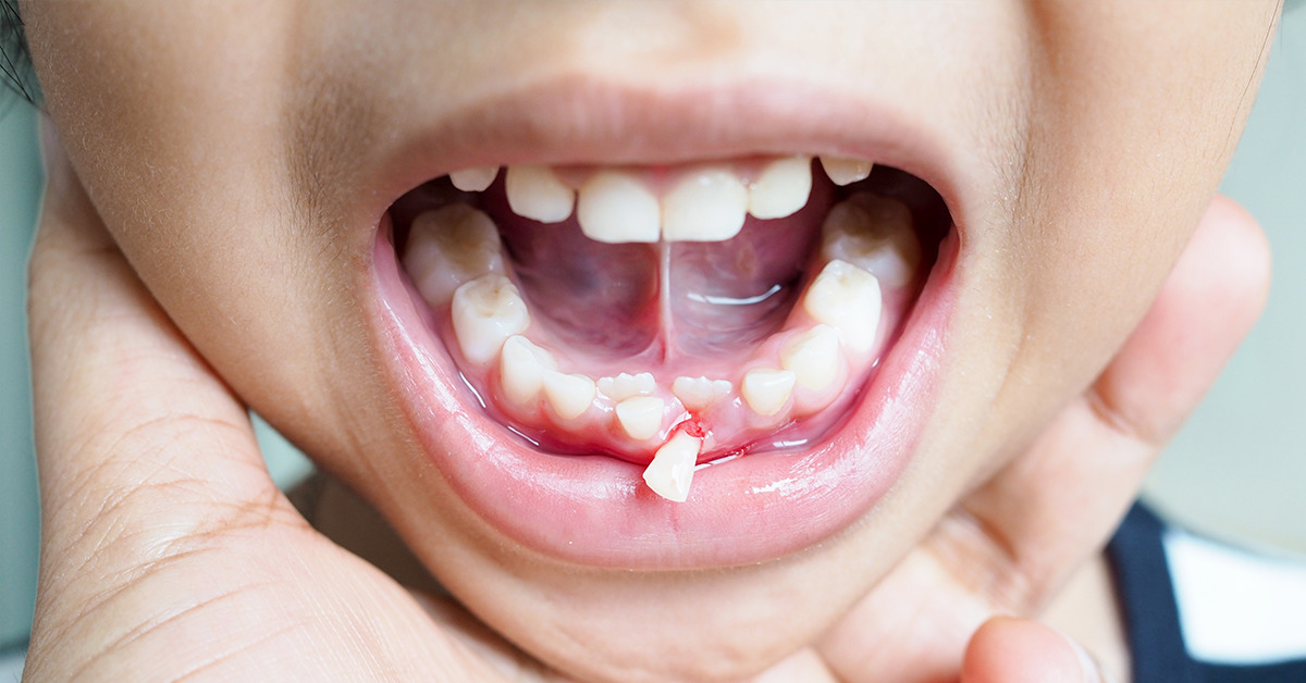 tooth extraction3
