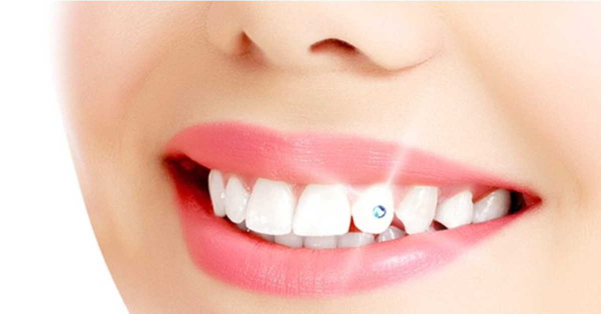 Tooth Jewellery-2