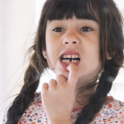 Children Oral health What all parents need to know2