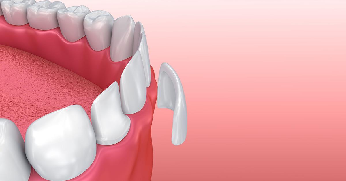 Dental-Veneers3