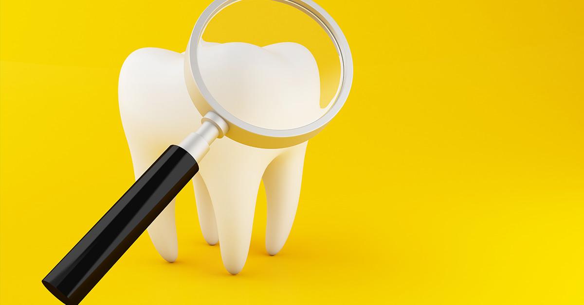 Best Dental CLinic in Delhi - 26-2-2020-4